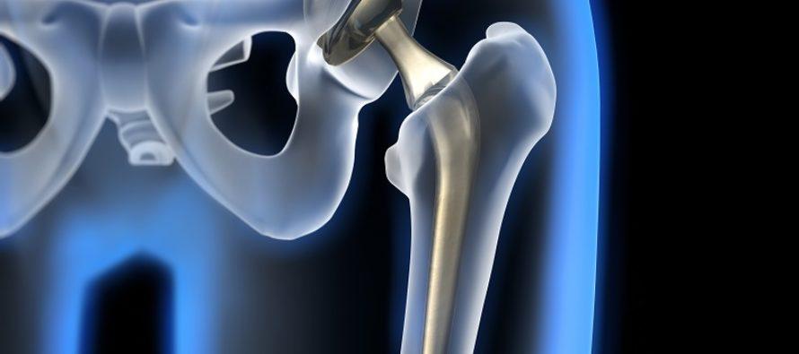 эндопротезирование суставов в барнауле