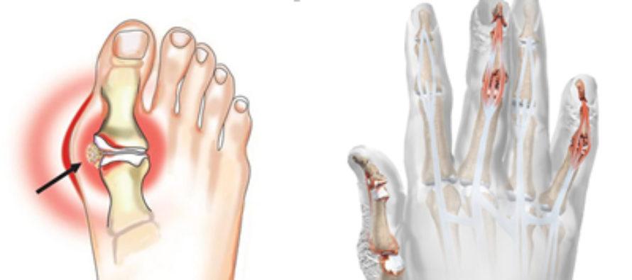 Симптомы лечения артрита