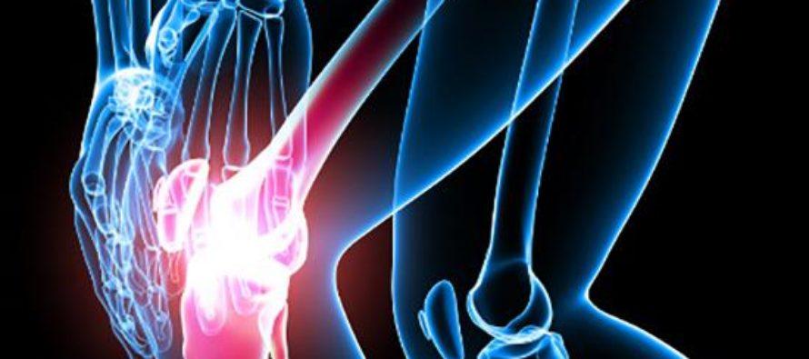 Что из себя представляет периартрит коленного сустава?