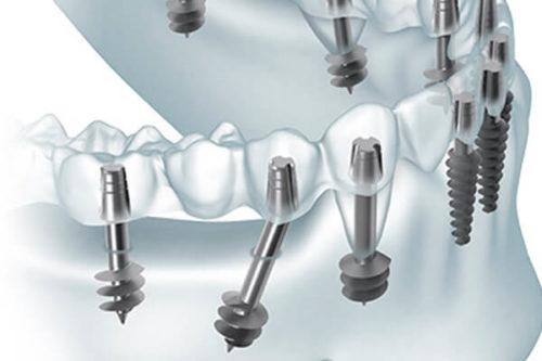 Имплантация зубов в москве рейтинг клиник отзывы