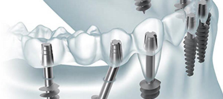Что из себя представляет базальная имплантация?