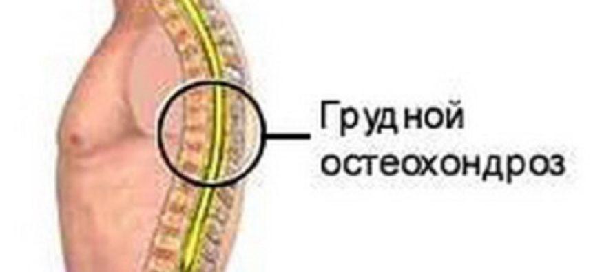 Симптомы остеохондроза позвоночника