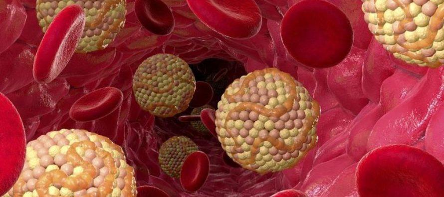 Холестерин в крови: норма и причины повышения