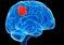 Какие есть виды опухолей головного мозга